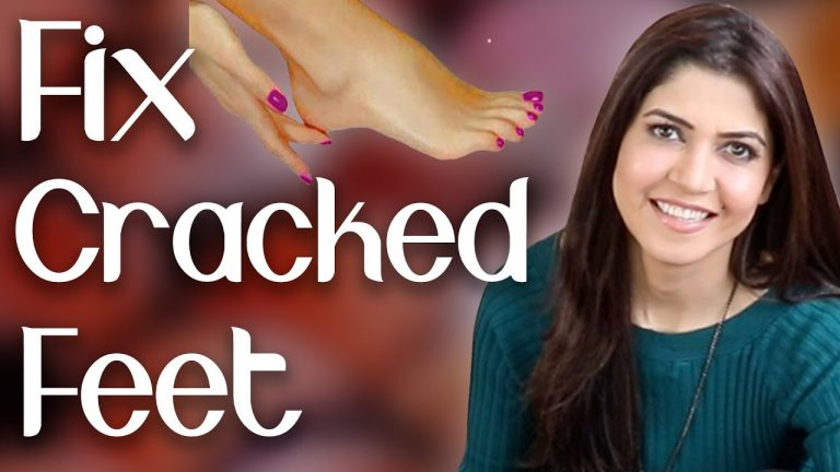 Fix Cracked Feet in Winters / Get Rid of Dry Feet Fast / Home Remedy  - Ghazal Siddique