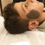 Live Treatment Session of Birthmark Removal from Child Face, Before After Results can be seen
