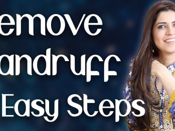 Remove Dandruff Fast with 3 Easy Steps / How to Get Rid of Dandruff / Home Remedy  - Ghazal Siddique