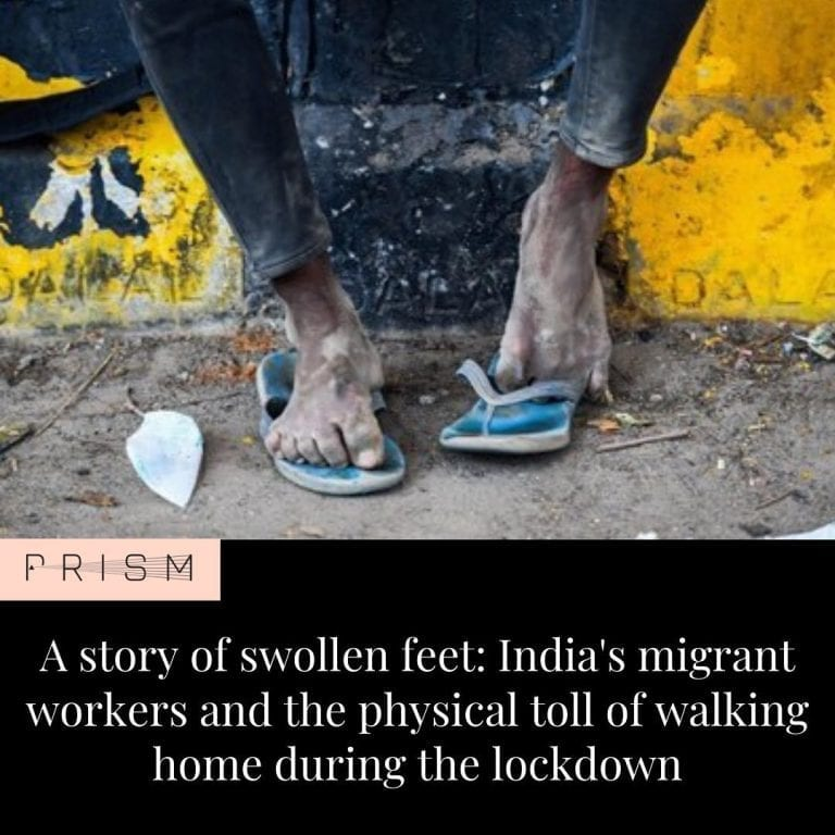 Across India, there are men and women with swollen feet. At a quarantine centre ... 3
