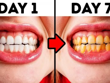 10 Mistakes You Make While Taking Care of Your Teeth