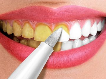 30 Amazing Hacks For A White Smile || Beauty Tricks and Tips