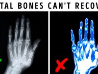 What If You Changed Your Bones to Metal