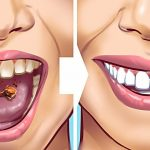 28 EASY TEETH HACKS THAT WORK MAGIC
