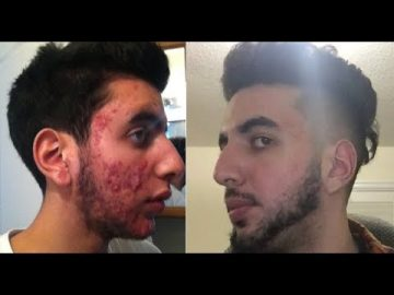 Fraxel CO2 Laser Acne Scar Before and after (Transformation)