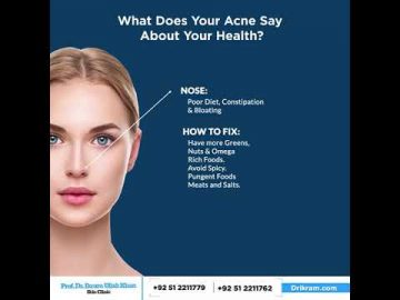 What does your Acne say about your health?