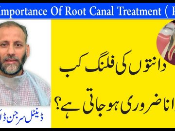 The Importance Of Root Canal Treatment