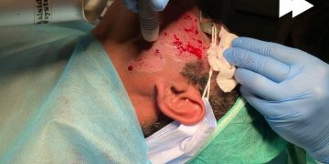 Live Treatment Session of Acne Scars Removal with Erbium Yag Laser