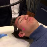 Non Ablative Treatment of Minor Acne Scars with YDUN CANDELA Laser