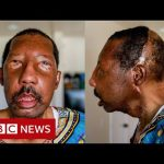 Robert Chelsea: 'My new life with a stranger's face' - BBC News
