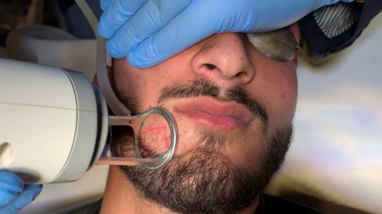 Accidental Scars Removal with Carbon Dioxide Laser
