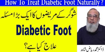 How To Treat Diabetic Foot Naturally