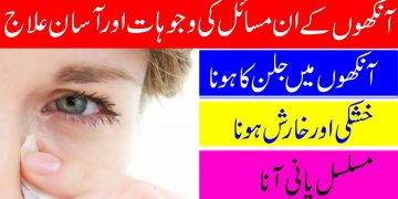 How To Treat Eyes Dryness & Itching