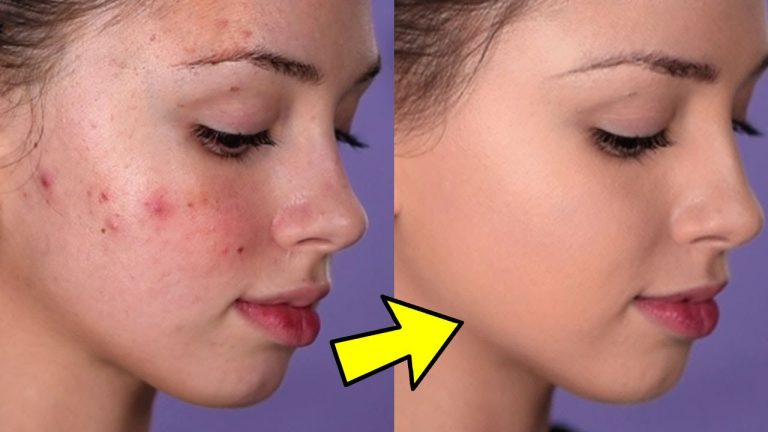How To Cover Acne and Blemishes ( EASY & NON-CAKEY )