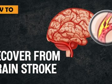 How to recover from Brain Stroke