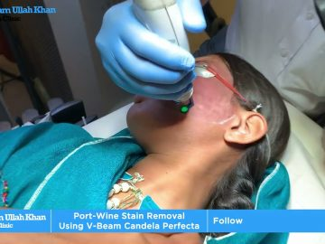 Removal of Port-Wine Stain with V Beam Candela at Prof. Dr. Ikram Ullah Khan Skin Clinic.
