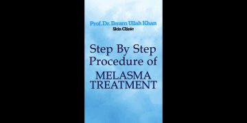 Dr. Ikram Ullah Khan Performing Step by step procedure for melasma and Telangectic blood vessels.