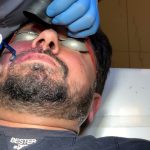 Port-Wine Stains Removal with Candela V-Beam Perfecta at Prof. Dr. Ikram Ullah Khan.