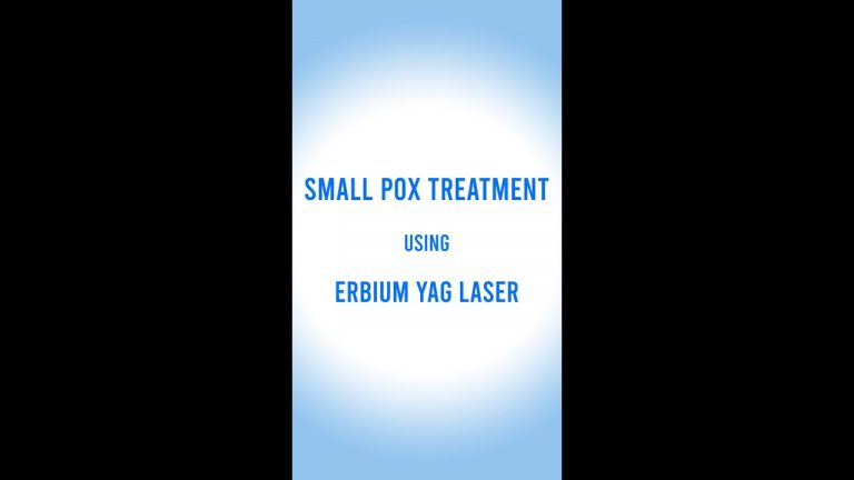 Small Pox Treatment with Erbium Yag Laser You can see magical results after 10 days