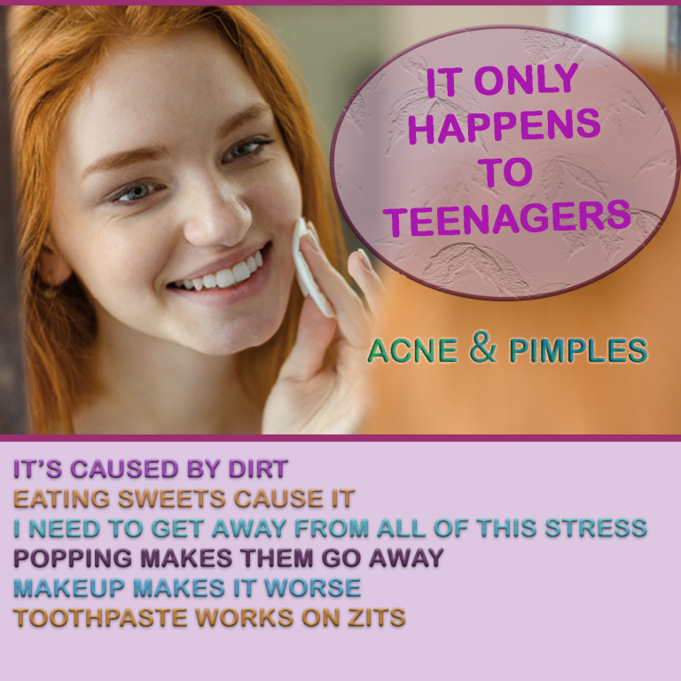 ACNE AND PIMPLES ONLY HAPPEN TO TEENAGERS. 1