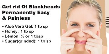 Blackheads removal can be done at home painlessly. 1